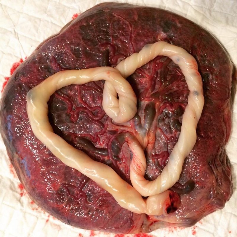 How and why I consumed my placenta